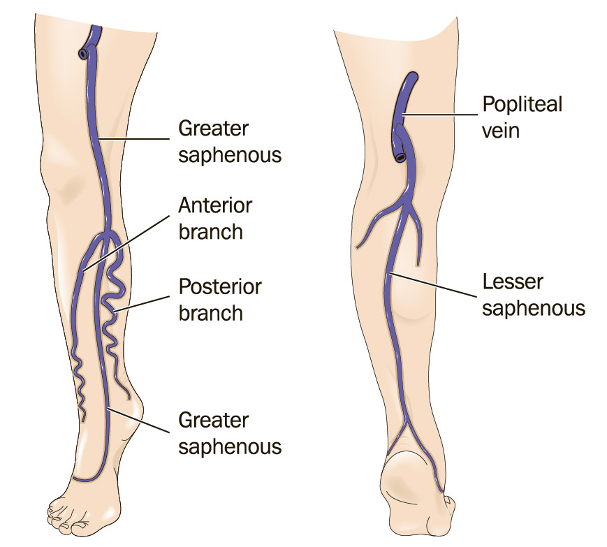 Great And Small Saphenous Veins Insufficiency Montreal Treatment